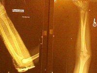Final X-ray 4-7-2015